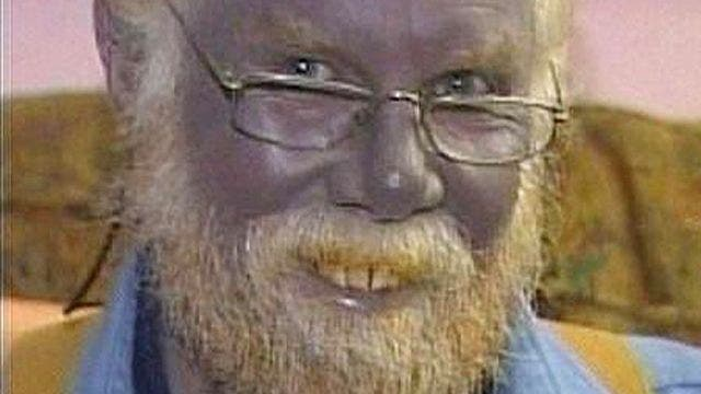 Man with completely blue skin dies at 62