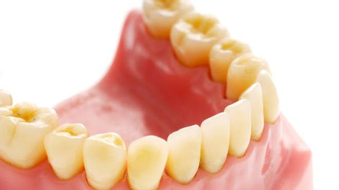 How 'smart teeth' could detect health habits