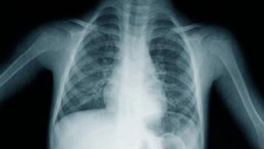 640_lung_xray.jpg