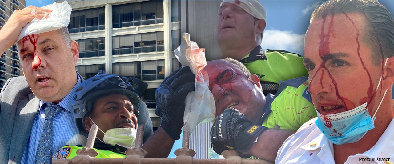 Suspect bashes and bloodies NYPD officers, including chief of department, amid protest
