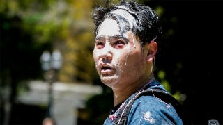 Far-left violence victim Andy Ngô speaks out on fleeing America