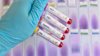 Blood sample positive with sexually transmitted diseases: HIV, HBV, HCV, Syphilis