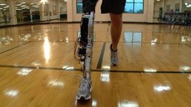 'Smart' Bionic Tech Returns Motion to Paralyzed, Amputees