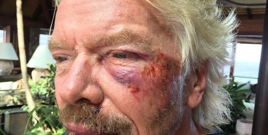 """Undated handout image issued by Virgin.com  on Friday Aug. 26, 2016,  of Sir Richard Branson after he was involved in an accident when he crashed his bicycle on Virgin Gorda, one of the British Virgin Islands in the Caribbean.  The Virgin founder badly damaged his cheek and suffered severe cuts to his knee, chin, shoulder and body. Sir Richard said: """"I was heading down a hill towards Leverick Bay when it suddenly got really dark and I managed to hit a traffic hump in the road head on.(Virgin.com via AP)"""