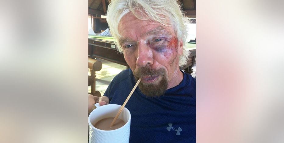 """Undated handout image issued by Virgin.com  on Friday Aug. 26, 2016 of Sir Richard Branson after he was involved in an accident when he crashed his bicycle on Virgin Gorda, one of the British Virgin Islands in the Caribbean.  The Virgin founder badly damaged his cheek and suffered severe cuts to his knee, chin, shoulder and body. Sir Richard said: """"I was heading down a hill towards Leverick Bay when it suddenly got really dark and I managed to hit a traffic hump in the road head on.(Virgin.com via AP)"""