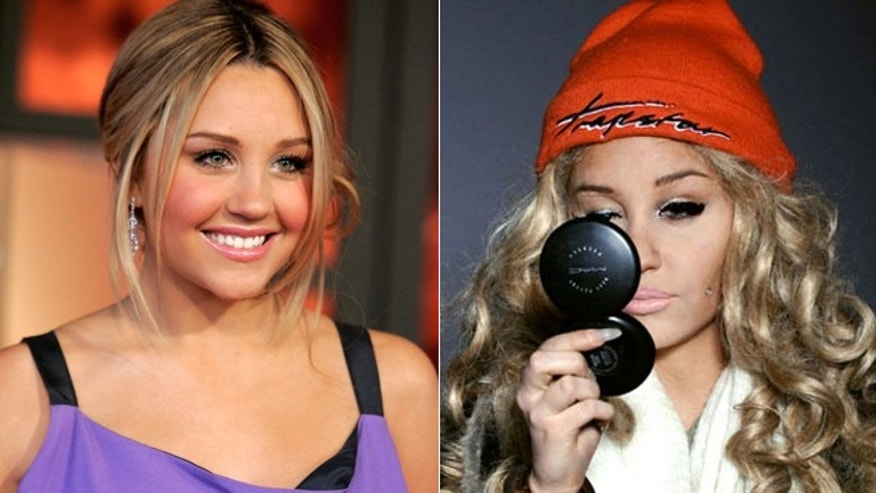 Amanda Bynes in 2008, left, and 2013.