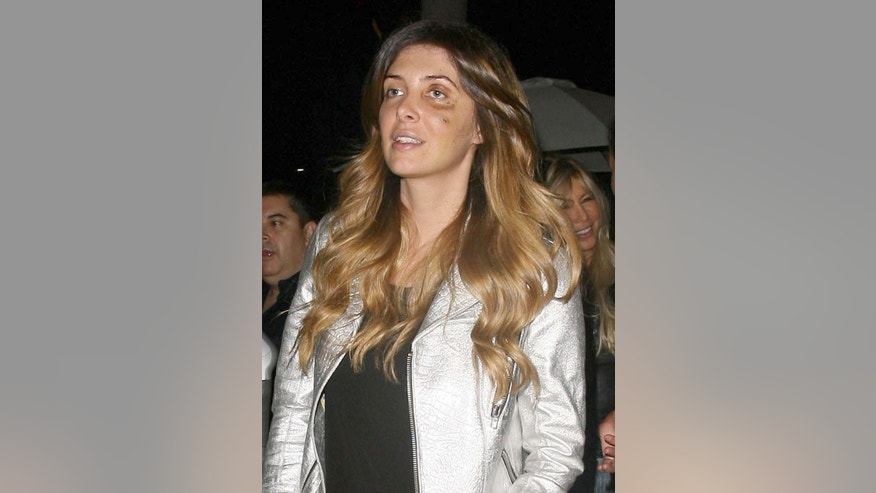 Brittny Gastineau sporting a black eye while out for dinner in Beverly Hills, California on June 10, 2014.