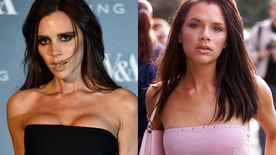 Victoria Beckham in 2015 (left) and in 2000 (right).