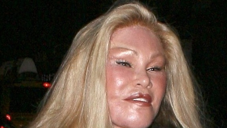 Jocelyn Wildenstein, aka catwoman, showing effect of new plastic surgery on her lips March 18, 2011 X17online.com
