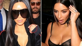 kim kardashian rings before after x17