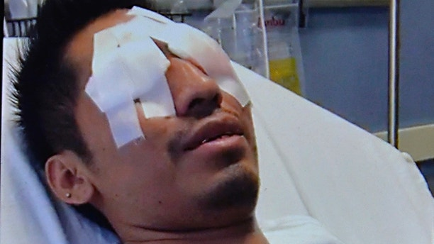 July 11, 2018 - New York, New York, United States: Gonzalo Luis-Morales while in the hospital. The former bar back at the Frying Pan bar/restaurant, lost the use of his left eye after a Corona bottle exploded in his face while at work as he placed it in an ice bucket for customers, permanently rendering the eye useless. Luis-Morales is suing Corona brewer Constellation Brands Inc., bottle manufacturer Owens-Illinois Inc. and distributor Manhattan Beer for negligence. (Matthew McDermott/Polaris) ///