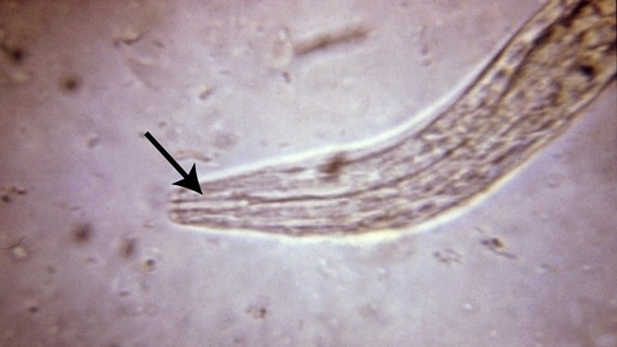 Larvae can become infective within feces and/or soil, and then be passed to humans on contact.