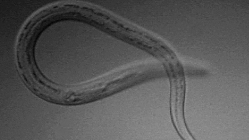 The Necator americanus parasitic nematode worm, which lives in the small intestine of hosts such as humans, dogs and cats.