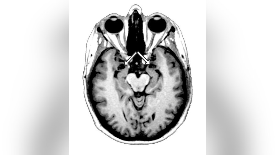 An undated image of a brain scan provided by the University of Iowa Department of Neurology, shows an MRI scan of patient SM's brain. The arrows point to the amygdala, the region of the brain which SM is missing, as shown by the vacant black holes underneath the arrows.  (AP Photo/University of Iowa Department of Neurology) NO SALES
