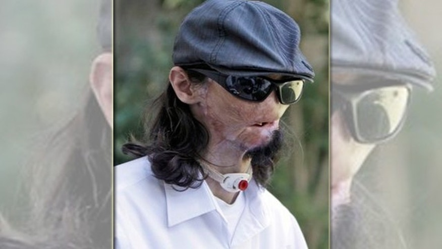 In this Oct. 13, 2011 file photo, Dallas Wiens, 25, speaks during an interview in Fort Worth, Texas. Weins was critically burned in a 2008 high-voltage power line accident and received a full face transplant at Brigham and Women's Hospital in Boston, during the week of March 14, 2011.