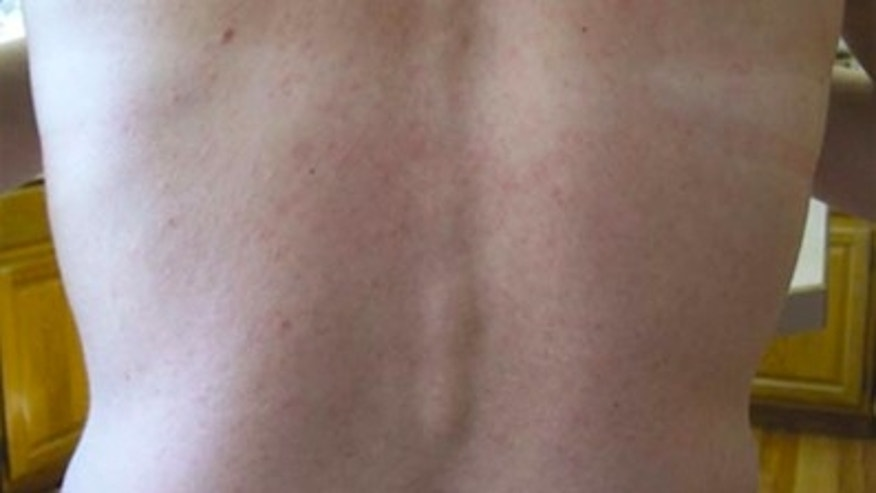 Maculopapular rash on patient 3 infected with Zika virus, Colorado, USA