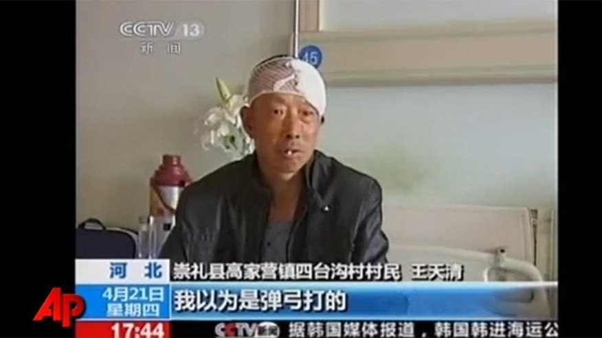 Wang's convulsions stopped once the bullet was removed from his head.