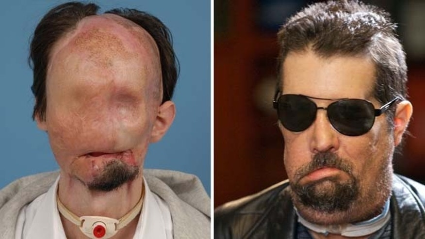 Dallas Wiens, before and after the full face transplant procedure performed at Brigham and Women's Hospital in March 2011.