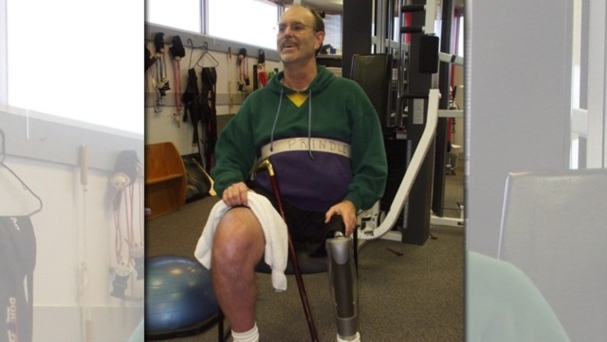 Mike Prindle using his new one-of-a-kind prosthetic leg.