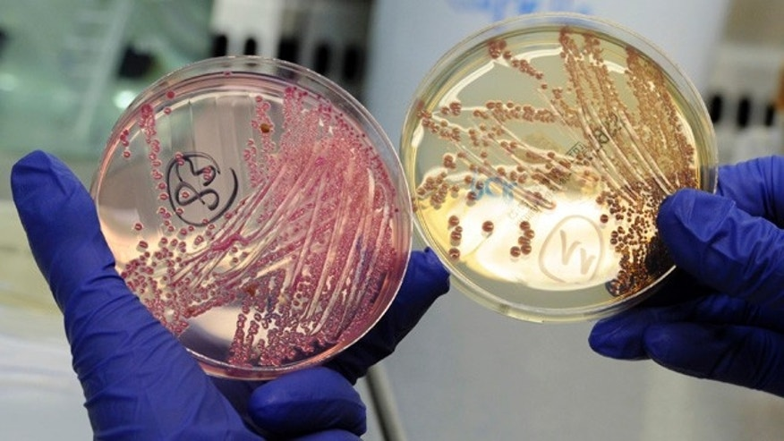 An employee holds petri dishes with bacterial strains of EHEC bacteria (bacterium Escherichia coli) in the microbiological laboratory of the Universitaetsklinikum Hamburg-Eppendorf (University Clinic Eppendorf- UKE) in the northern German town of Hamburg, June 2, 2011.