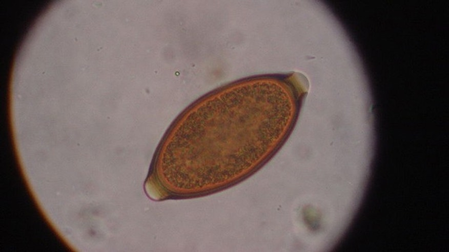 Egg from Trichuris vulpis (canine whipworm) seen through a microscope.