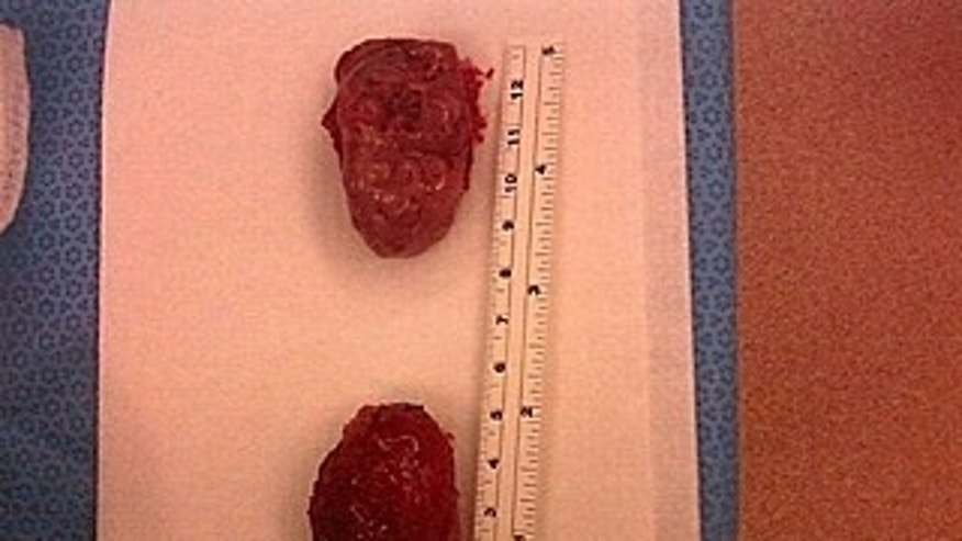 The largest tonsils in the world.