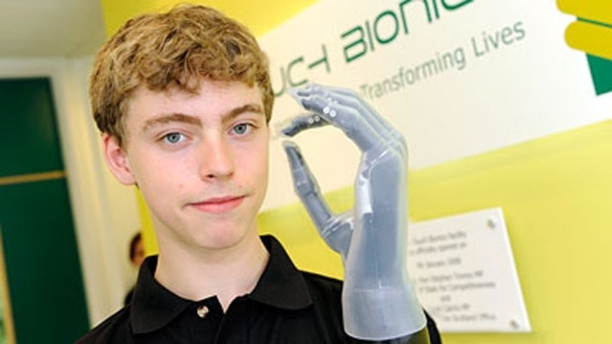 Matthew James, 14, shows off his new bionic hand made by Touch Bionics.