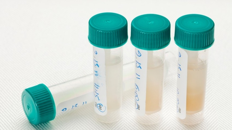 saliva samples for laboratory test