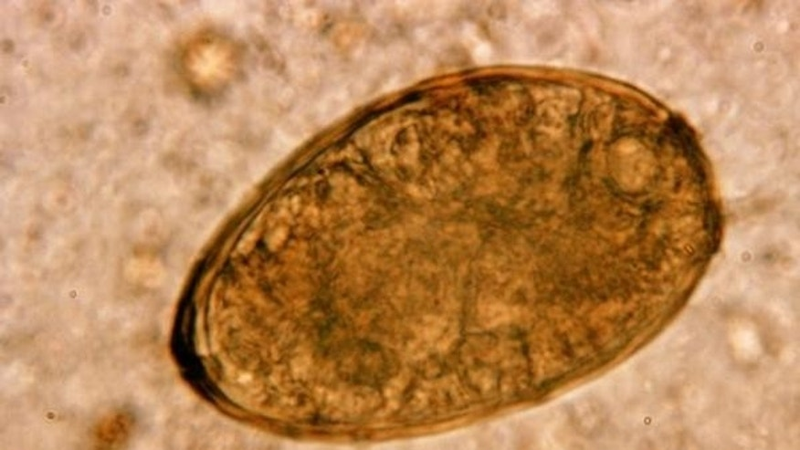 This photo shows an egg from the fluke worm parasite Paragonimus westermani, which can infect the lungs of people who eat raw shellfish.
