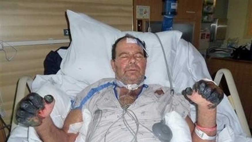This photo supplied by the Gaylord family taken July 6, 2012, at a hospital in Bend, Ore., shows Paul Gaylord as he recovers from the plague.  (AP Photo/The Gaylord Family, ho)