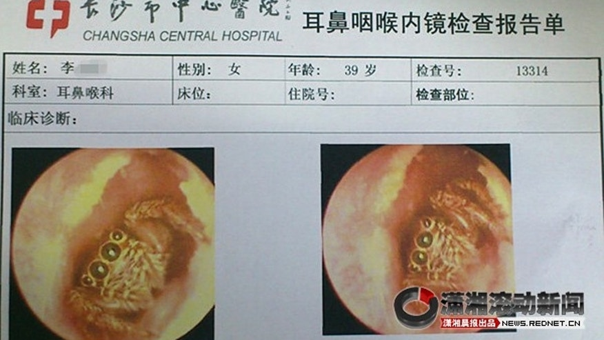 Pictures of Ms. Lee's ear canal, with a spider inside.
