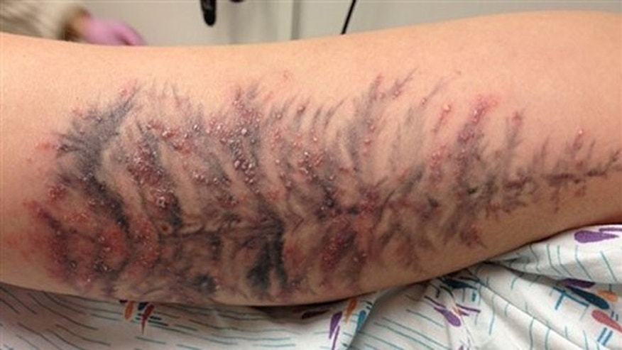 In this undated photo provided by the University of Washington, the arm of a Washington State woman is shown after  developing an infection earlier this year  after receiving a tattoo.