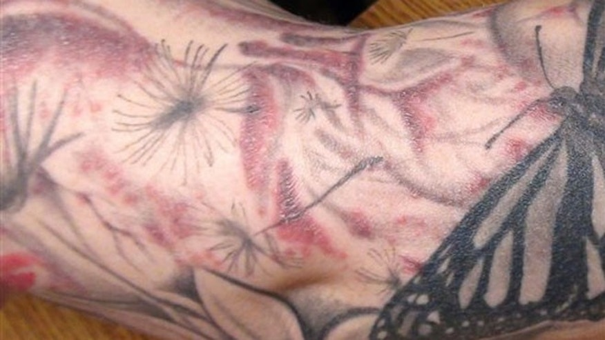 In this Jan 2012 photo provided by the Monroe County (N.Y.) Department of Public Health  a persons arm is seen after receiving a tattoo covered with a red bubbly rash.