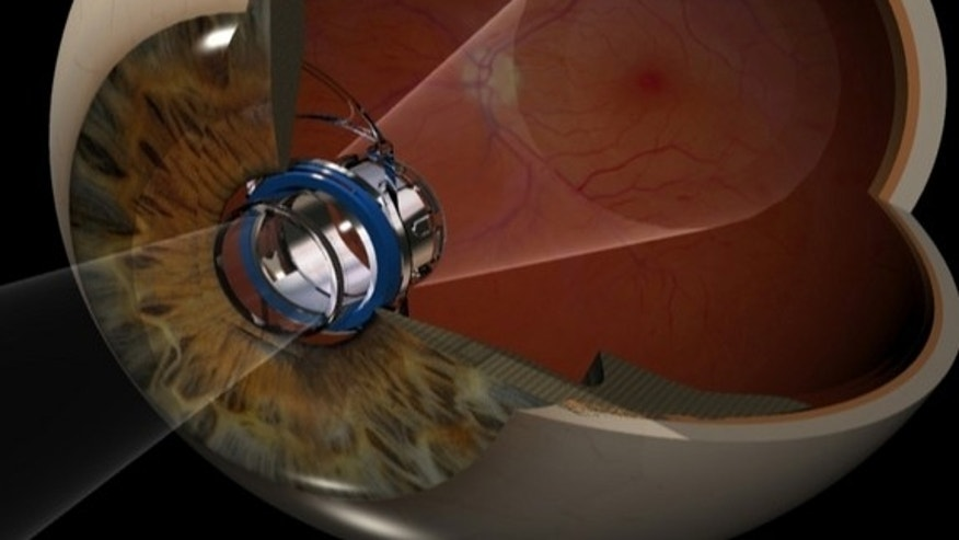 The implantable telescope technology reduces the impact of the central vision blind spot from advanced macular degeneration. The telescope implant projects the objects the patient is looking at on to the healthy area of the light-sensing retina