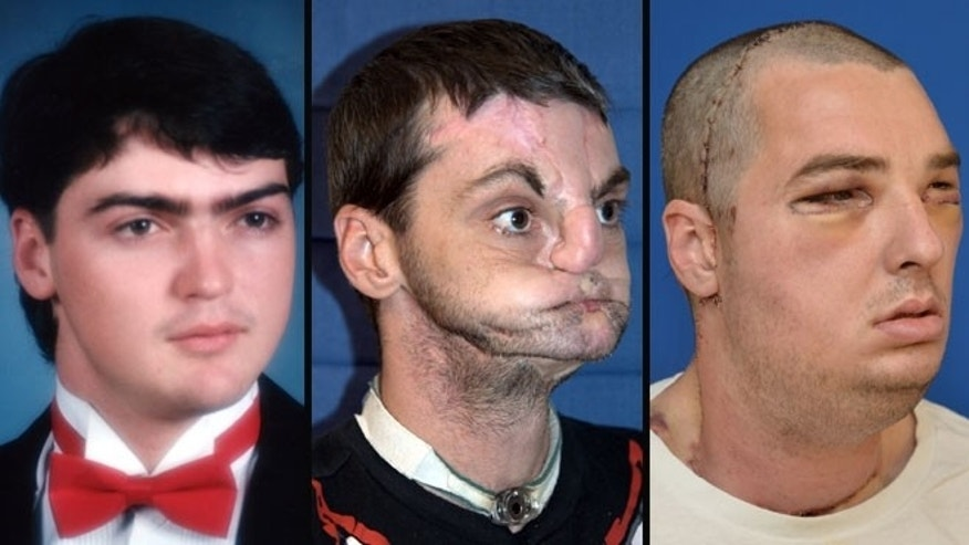 Richard Norris at his prom, after his accident and after the face transplant.