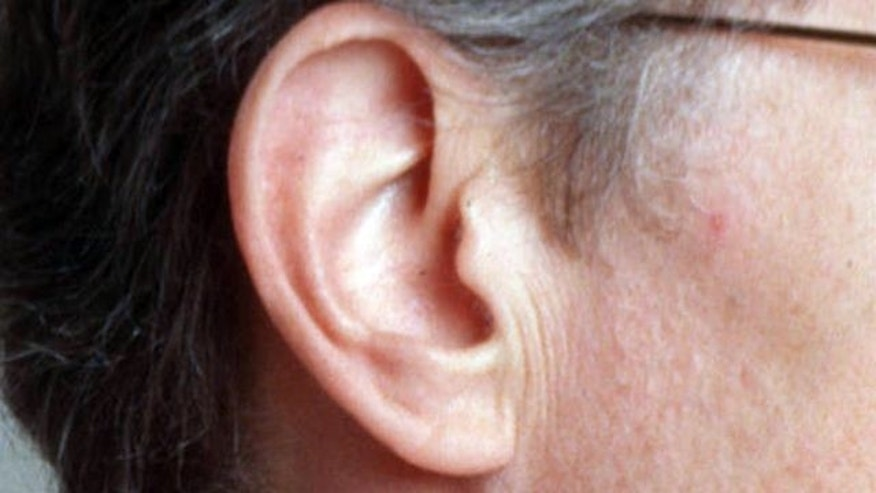 analysis of a hearing loss How to read your audiogram and make sense of your hearing test results calculate your hearing threshold and learn the degree of your hearing loss.