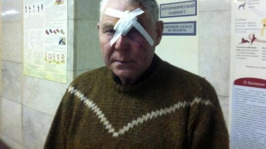February 15, 2013: A man identifying himself as Viktor poses for a photograph after receiving treatment for injuries sustained from a shock wave that followed after a falling object was sighted in the sky in the Urals region, at an emergency room in a hospital in Chelyabinskk, Russia.