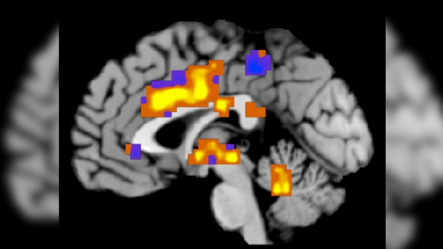 "This image created by Tor Wager of the University of Colorado, Boulder shows regions of the ""neurologic pain signature,"" a standard map that can be applied to individual people who may be experiencing pain."