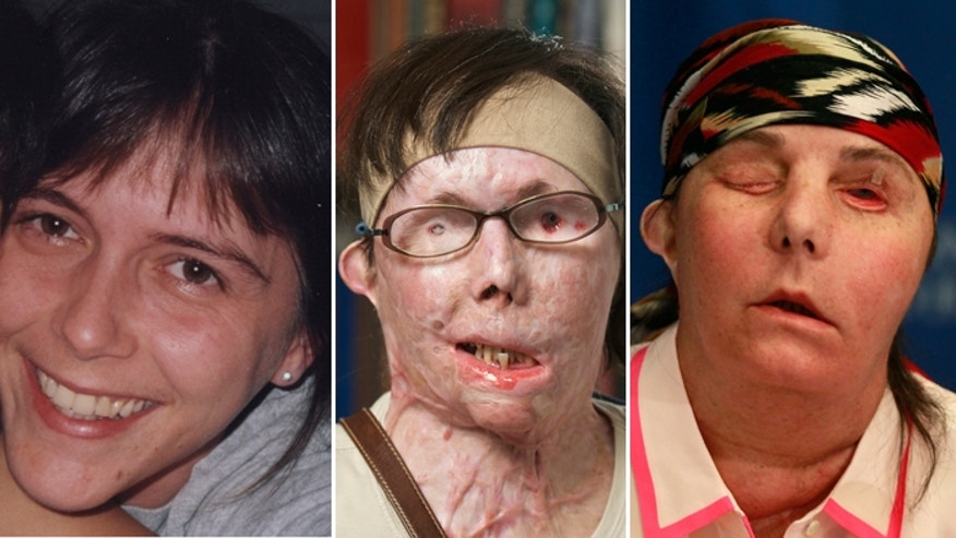 Carmen Blandin Tarleton before being attacked (left), after the attack (center) and after her face transplant (right).