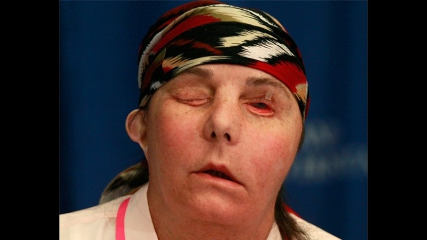 Carmen Blandin Tarleton after receiving a face transplant at Brigham and Women's Hospital.