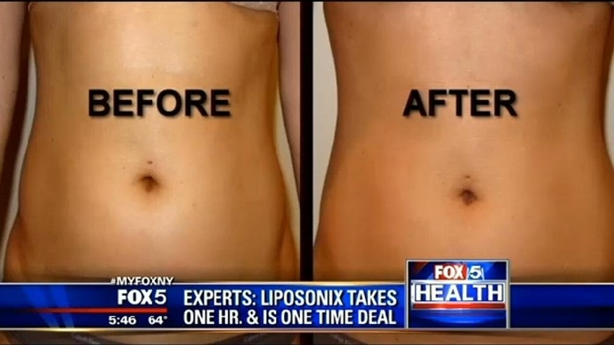 Before and after Liposonix.