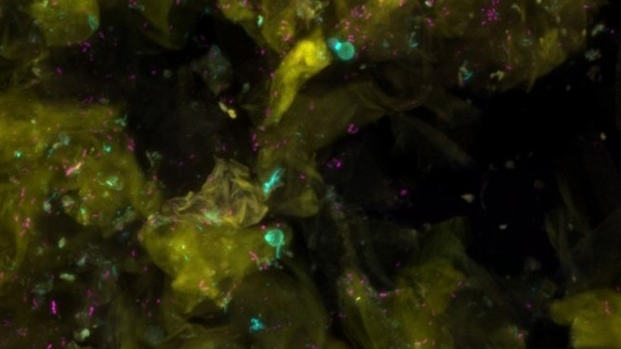 Upper layers of human skin (cells fluoresce yellow) with bacteria (magenta) and fungi (cyan).