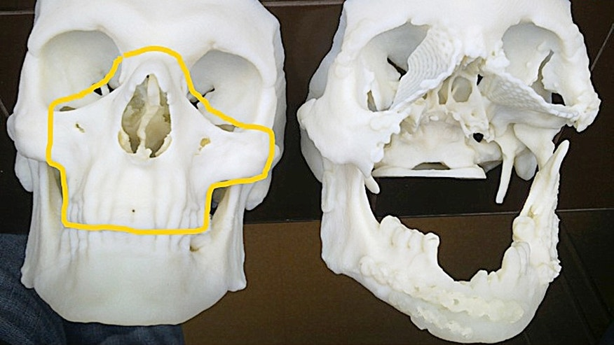 This computerized tomography shows the skull of a 33-year-old Polish man after it was damaged in a work accident, right,  alongside the healthy skull of another person.