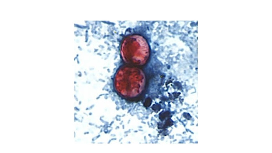 A pair of oocysts of Cyclospora cayetanensis stained with safranin.