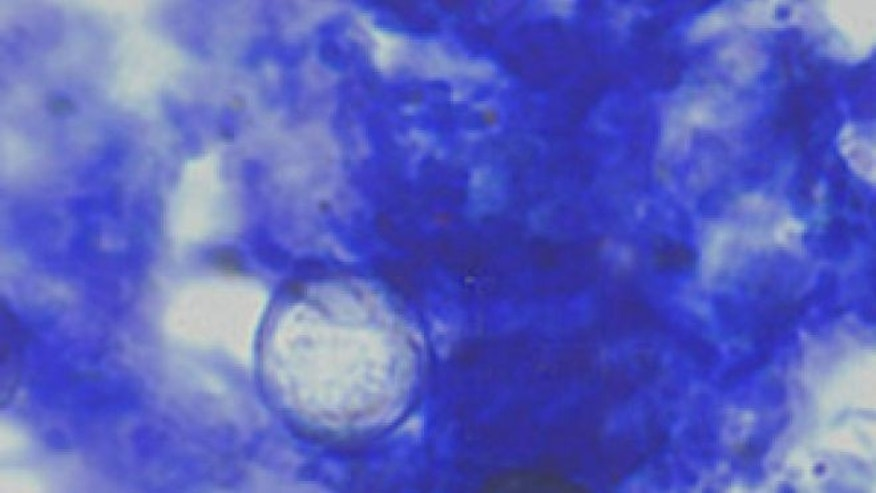 Oocysts of Cyclospora cayetanensis stained with modified acid-fast stain.
