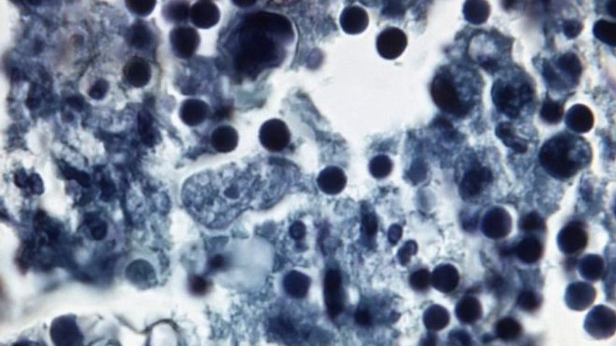 Naegleria fowleri in human brain tissue. (CDC.GOV)