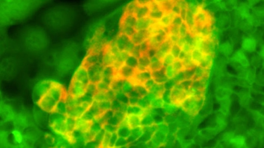 Foregut stem cells (green) differentiated into pancreatic cells expressing insulin.