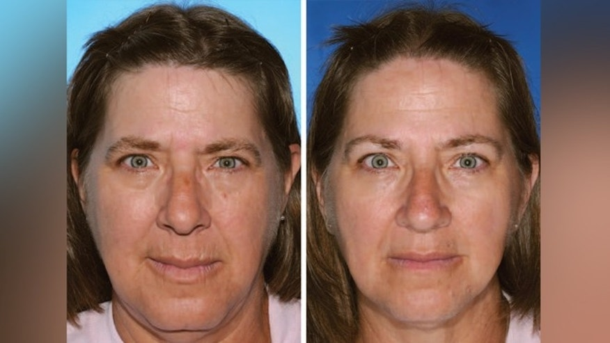 The twin on the left smoked 17 years longer than the twin on the right, according to the report. Differences are visible in their lower lid bags and upper and lower lip wrinkles.
