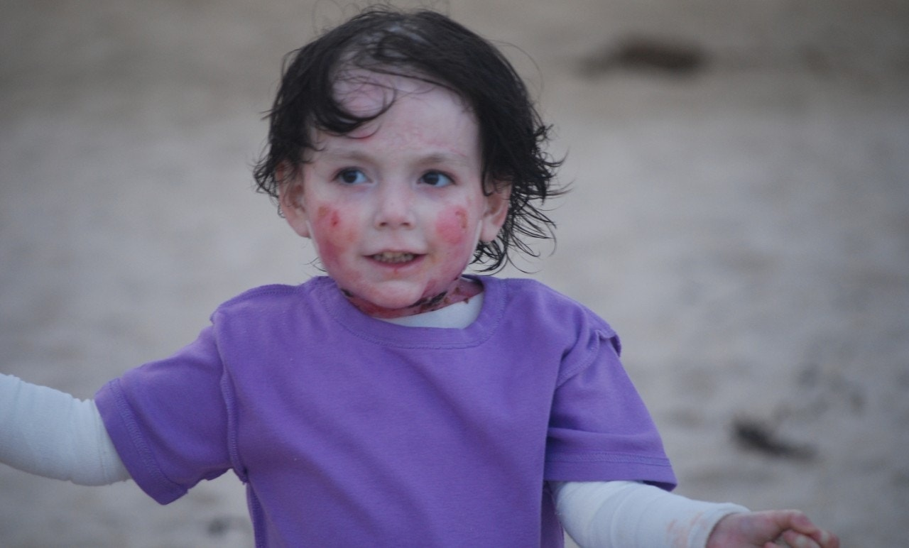 'Butterfly children': The tragic condition that makes kids ...