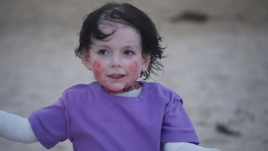 6-year-old Rafi on the beach.  Rafi suffers from epidermolysis bullosa, a condition that causes her skin to blister when she encounters trauma.
